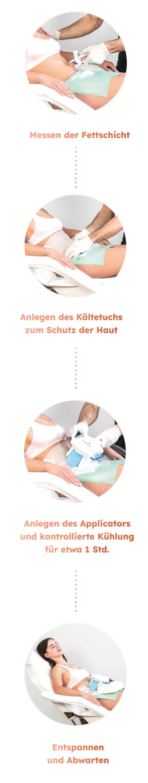 Frauenschönheit - Ablauf der Behandlung - Frauenarzt   Gynäkologikum 24 - Praxis für Gynäkologie München   Zentrum
